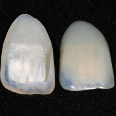 laminatės dantims